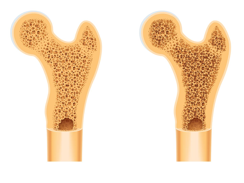 Article-Activité physique et ostéoporose